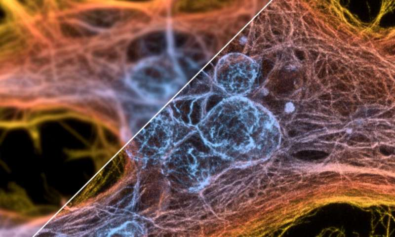 1 universalalg الگوریتم جهانی برای تقویت میکروسکوپ ها